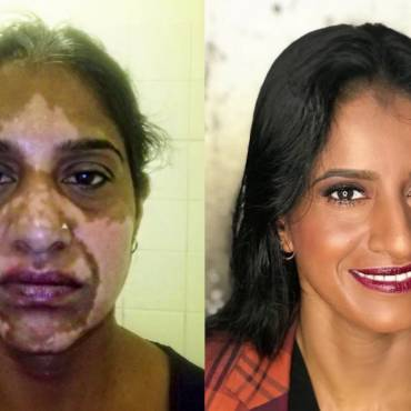 Vitiligo Before & After